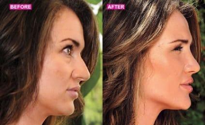 Bachelor Pad Plastic Surgery: Ella Nolan Transforms!
