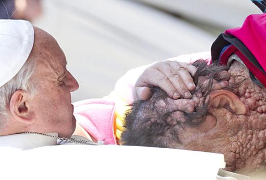 Pope Embraces Disfigured Man