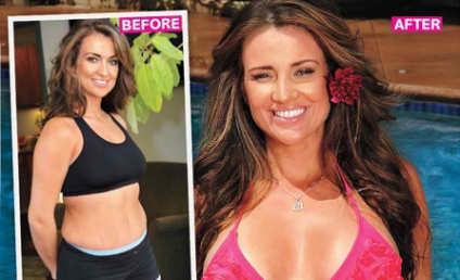Bad Plastic Surgery Watch: Stephanie Pratt