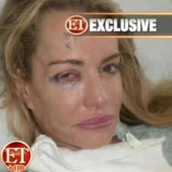 Taylor Armstrong Hospital Pic