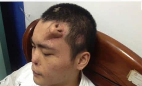 Nose Regrown on Forehead