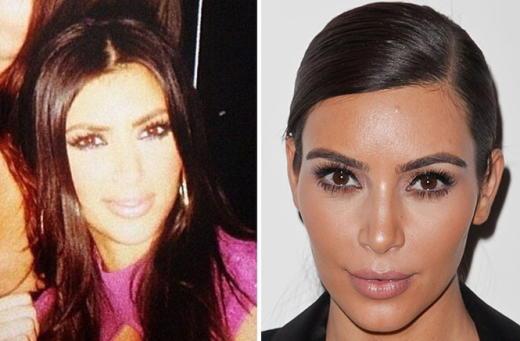 Kim Kardashian Plastic Surgery Photo