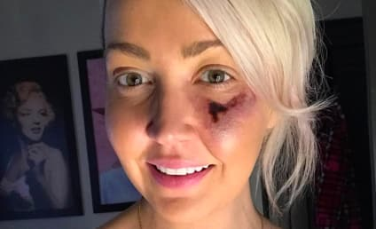 Meghan Linsey Updates Fans on Gruesome Spider Bite