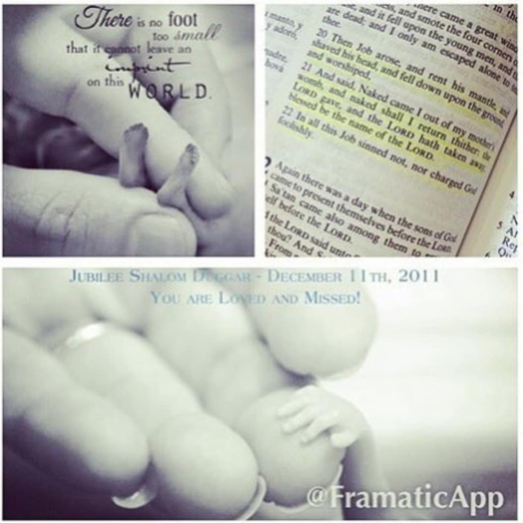 Duggars pictures of stillborn
