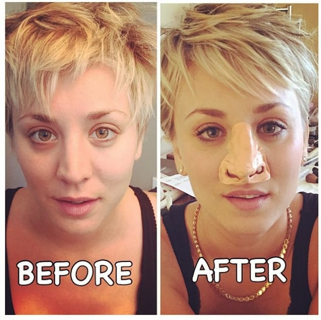 Kaley Cuoco Nose Job Before And After
