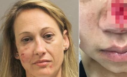 Texas Woman Arrested for Biting Off Fellow Party Goer's Nose
