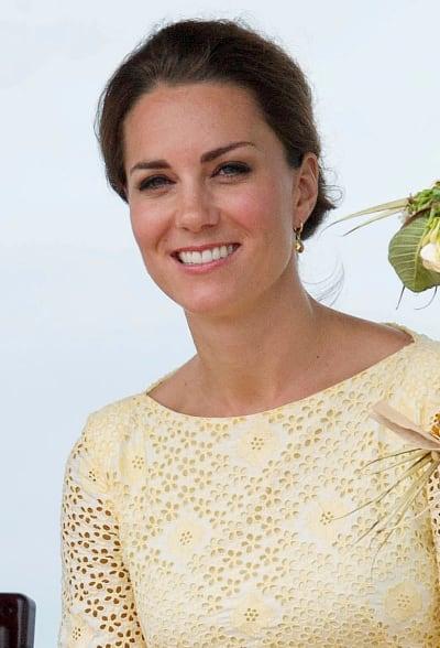 Kate Middleton Teeth
