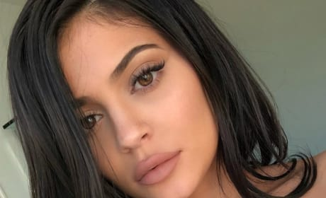 Kylie Jenner's Lips Picture