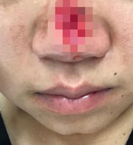 no nose