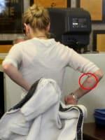 Lindsay Lohan Track Marks?