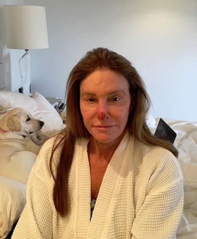 Caitlyn Jenner, Nose Damage