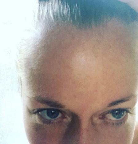 Kendra Wilkinson Forehead
