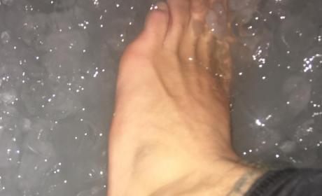Justin Bieber Swollen Ankle