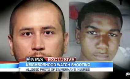 George Zimmerman Photo Shows Bloody Head, May Bolster Self-Defense Claim