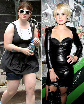 Kelly Osbourne Before and After