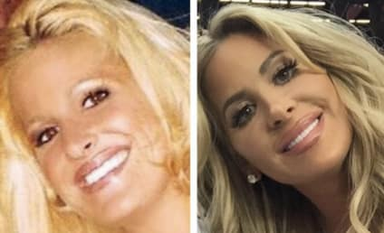 Kim Zolciak Shares Before and After Pics, Still Won't Admit to Plastic Surgery