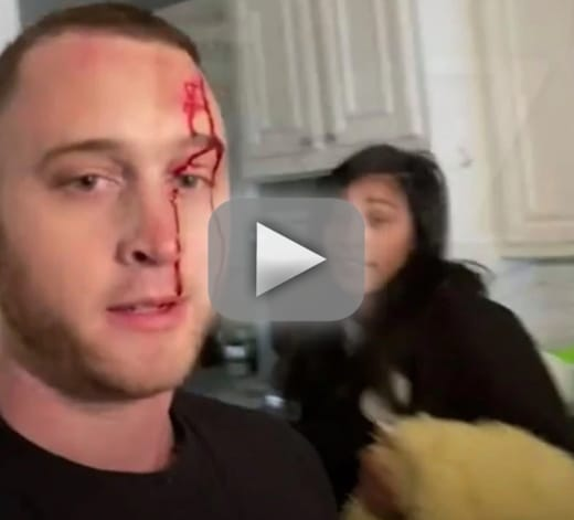 Chet hanks my girlfriend stabbed me in the head