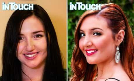 Ashley Horn Plastic Surgery Pics