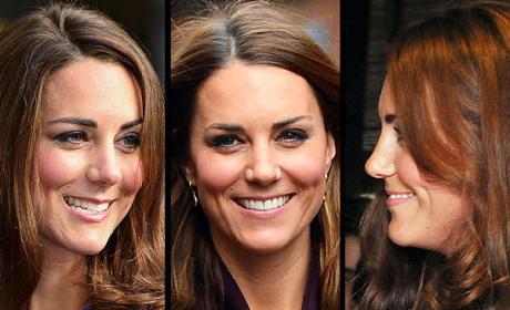 Kate Middleton Nose Photos