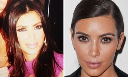 Kim Kardashian: Plastic Surgery Before and After Pics on Instagram?