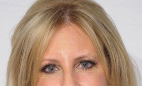 Vicki Gunvalson Before Plastic Surgery