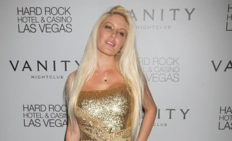 Heidi Montag Plastic Surgery Photo