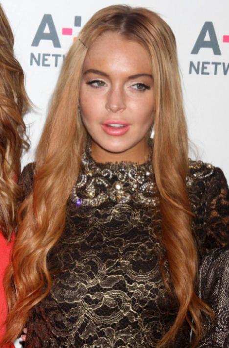 Lindsay Lohan, Lip Injections