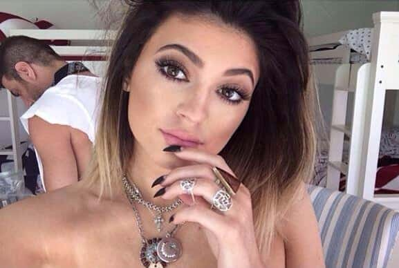 Kylie Jenner: Lip Injections?