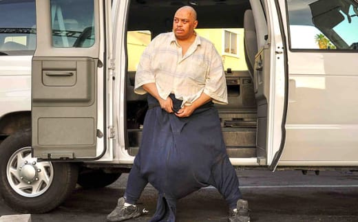 The Man with the 132-Lb Scrotum Picture
