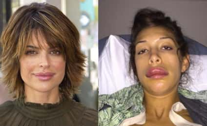"""Lisa Rinna Posts Farrah Abraham Lip Injections Pic, Apologizes For """"Starting This S--t"""""""