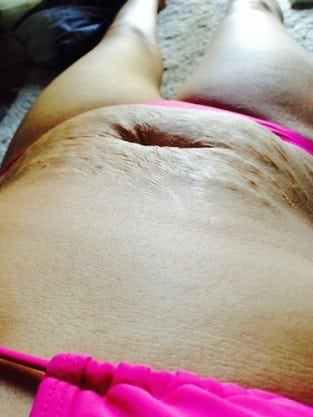 Mother Stretch Marks