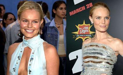 Memo to Kate Bosworth: EAT!
