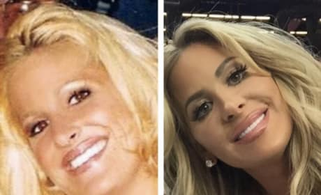 Kim Zolciak Before and After