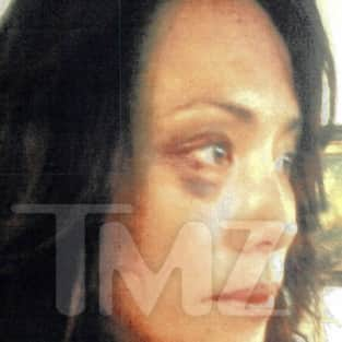 Terrence Howard Wife Black Eye
