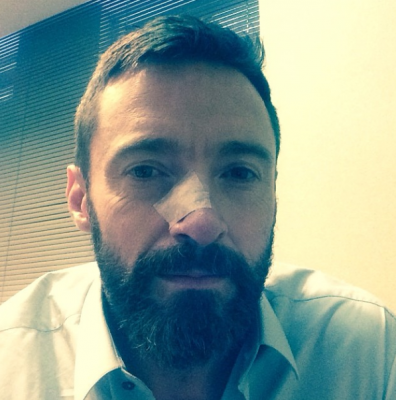 Hugh Jackman Cancer Scare Pic