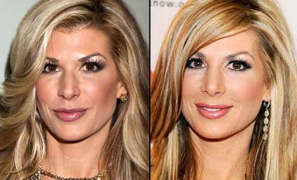 Alexis Bellino Flaunts Nose Job