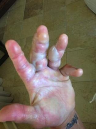 Hogan Hand