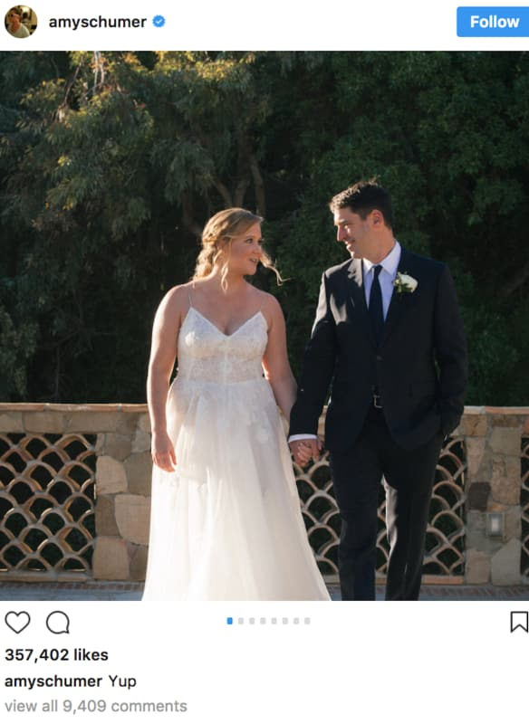 Amy schumer wedding pic