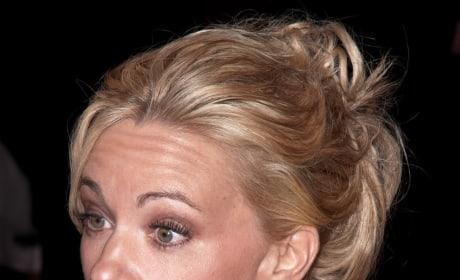 Kate Gosselin Facelift