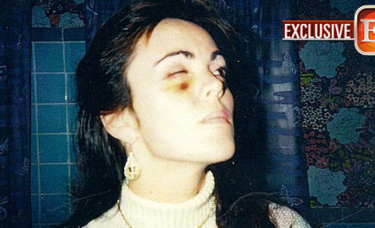 Dina Lohan Black Eye Photos: Revealed! Vintage!
