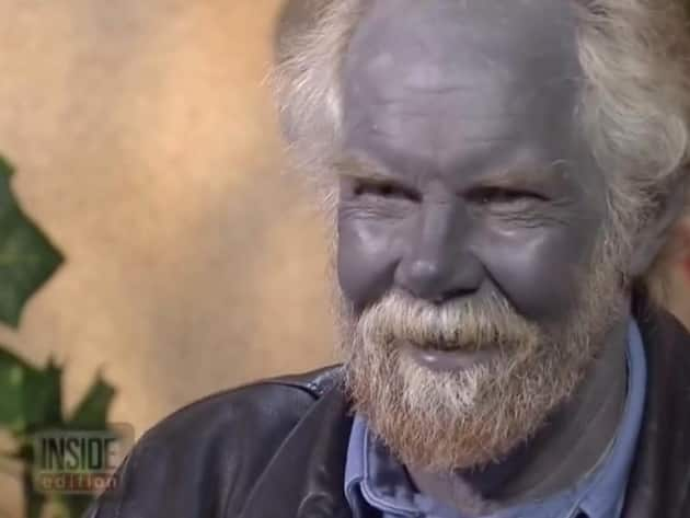 Paul Karason Dies Medical Mystery Known As Quot Blue Man Quot Or