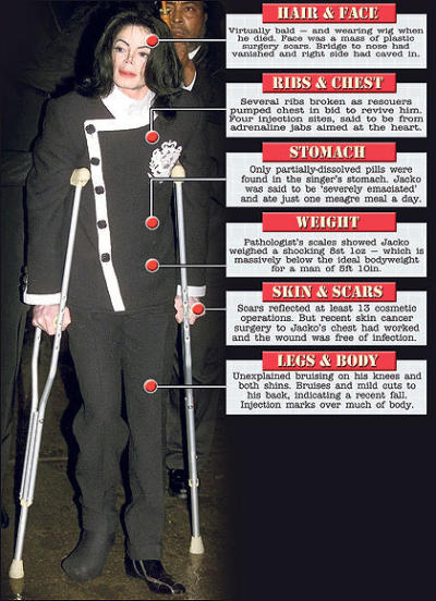 Michael Jackson Autopsy Findings