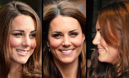 Kate Middleton: Plastic Surgery Inspiration!