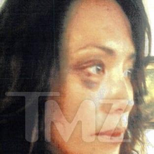 Terrence Howard Wife Black Eye