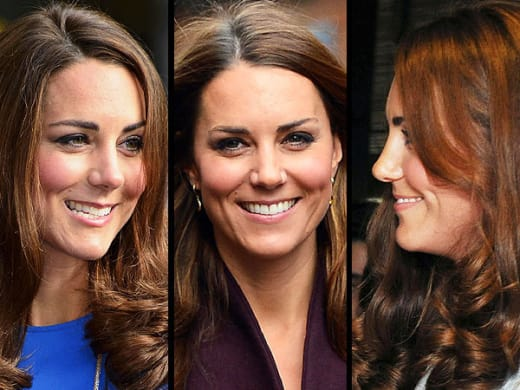 Kate Middleton Nose Photos