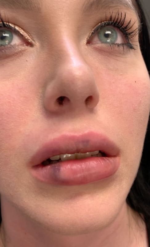 Deavan clegg bad lips despair