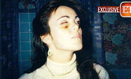 Dina Lohan Black Eye Photos: Revealed! Vintage!