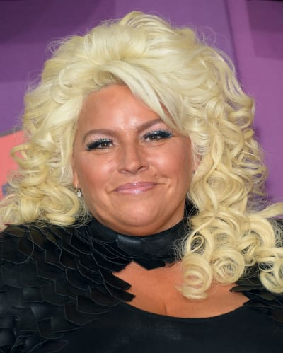 Dog the Bounty Hunter star Beth Chapman underwent throat surgery