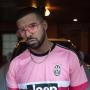 Drake: SLAMMED For Mocking Kid Cudi's Mental Illness on New Diss Track