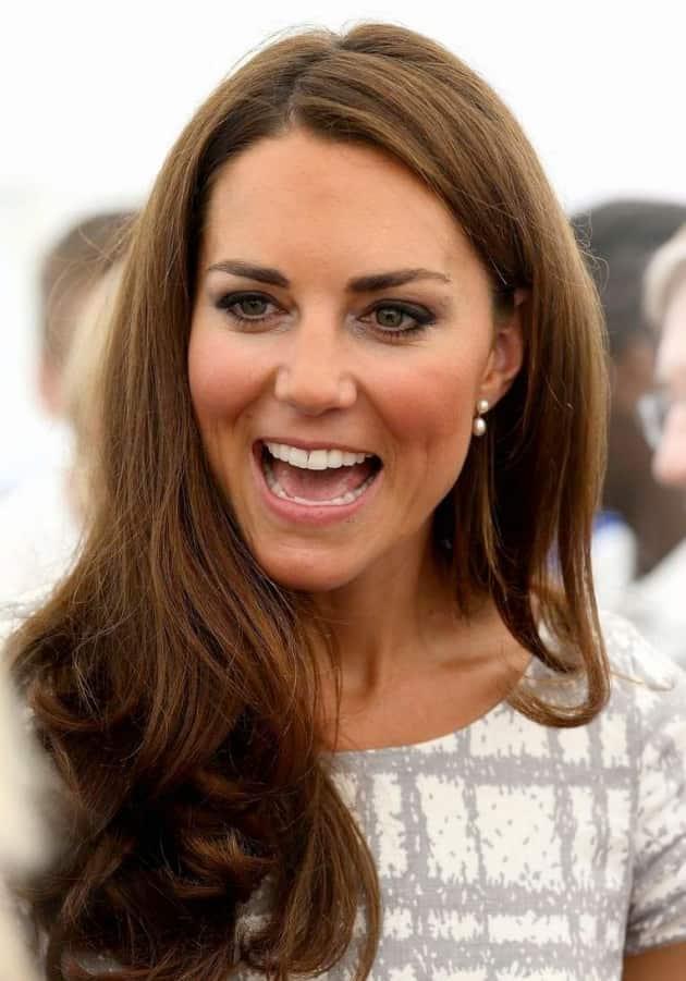 Kate Middleton White Teeth